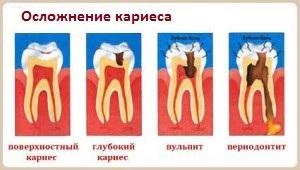kak-chasto-nuzhno-poseschat-stomatologa-300x170