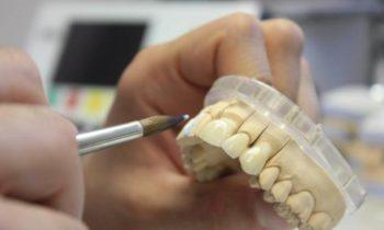 протезироване зубов несъемные протезы
