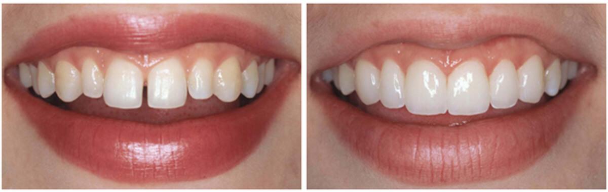 Что такое эстетическая стоматология фото